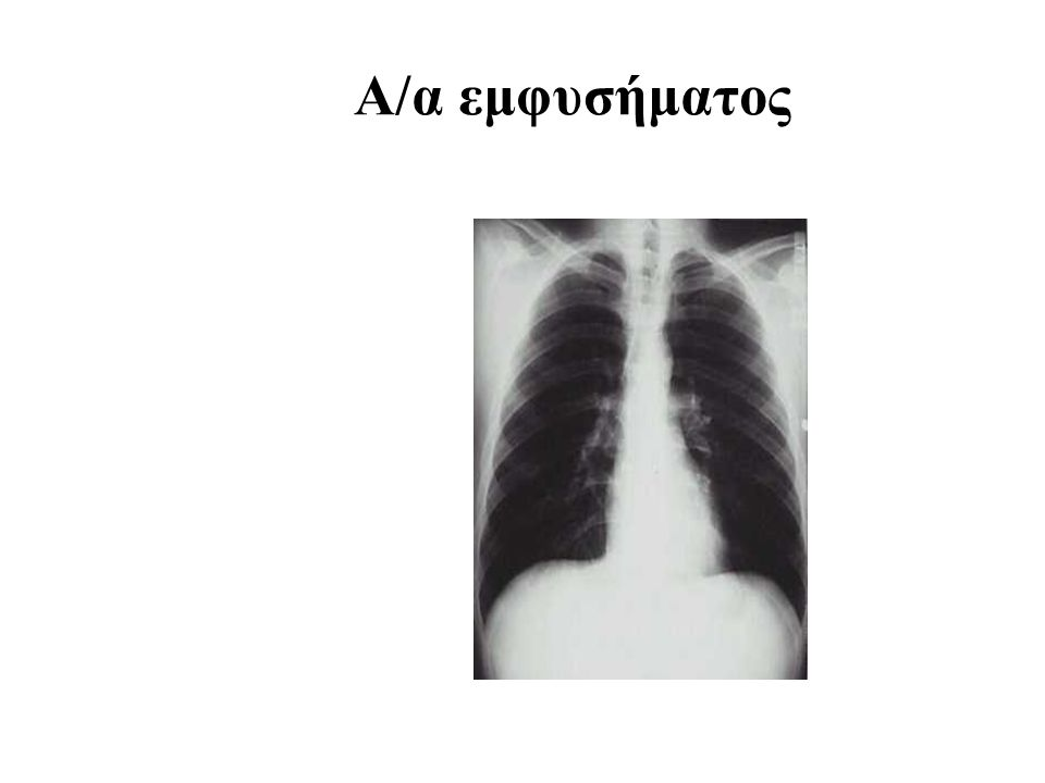 Α/α εμφυσήματος