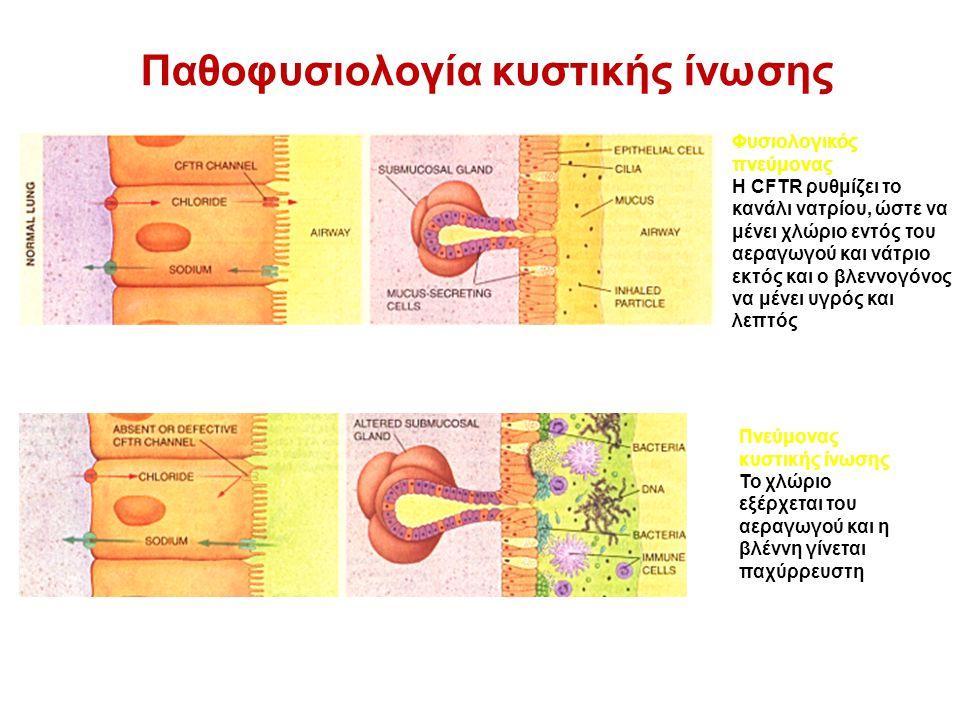 Φυσιολογικός πνεύμονας Η CFTR ρυθμίζει το κανάλι νατρίου, ώστε να μένει χλώριο εντός του αεραγωγού και νάτριο εκτός και ο βλεννογόνος να μένει υγρός και λεπτός Πνεύμονας κυστικής ίνωσης Το χλώριο εξέρχεται του αεραγωγού και η βλέννη γίνεται παχύρρευστη Παθοφυσιολογία κυστικής ίνωσης