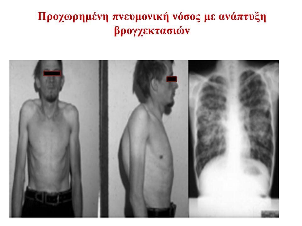 Προχωρημένη πνευμονική νόσος με ανάπτυξη βρογχεκτασιών
