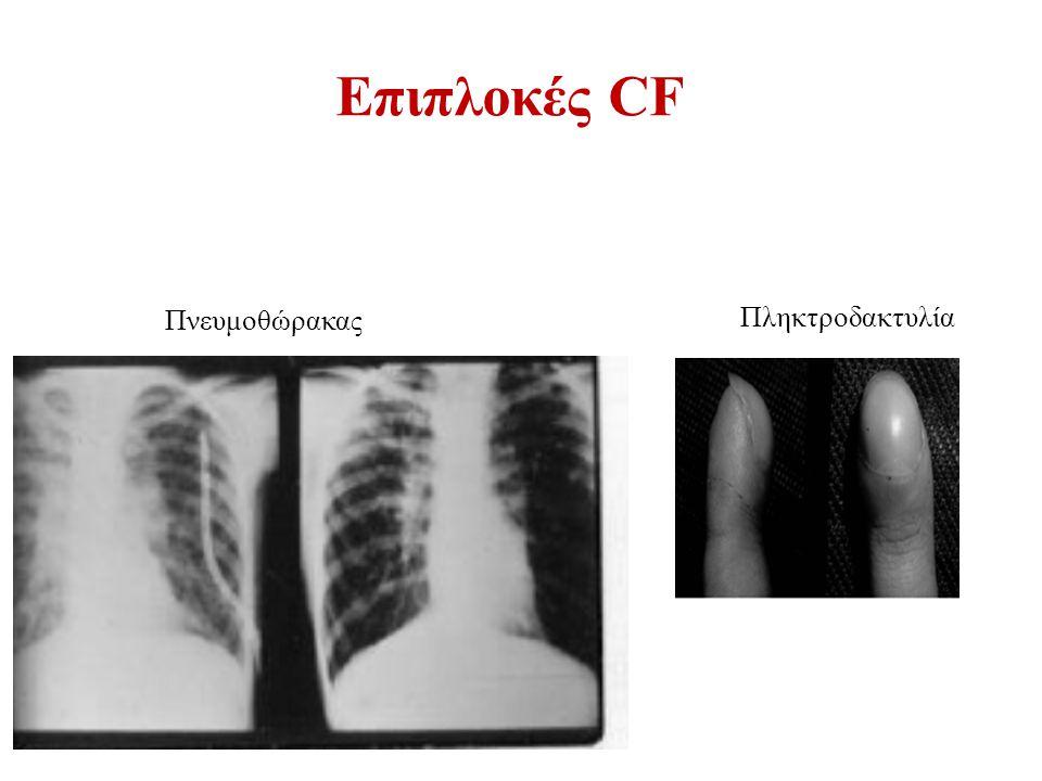 Επιπλοκές CF Πνευμοθώρακας Πληκτροδακτυλία