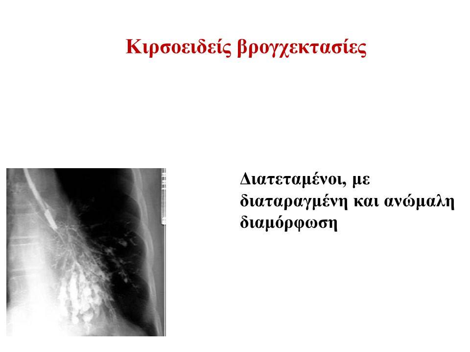 Κιρσοειδείς βρογχεκτασίες Διατεταμένοι, με διαταραγμένη και ανώμαλη διαμόρφωση