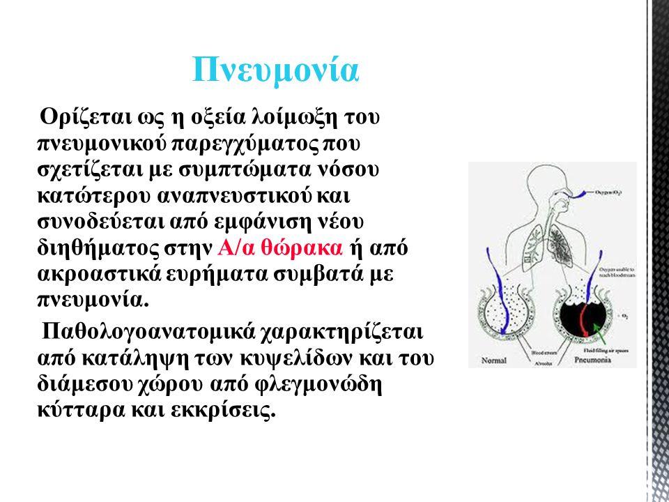 Ορίζεται ως η οξεία λοίμωξη του πνευμονικού παρεγχύματος που σχετίζεται με συμπτώματα νόσου κατώτερου αναπνευστικού και συνοδεύεται από εμφάνιση νέου διηθήματος στην Α/α θώρακα ή από ακροαστικά ευρήματα συμβατά με πνευμονία.