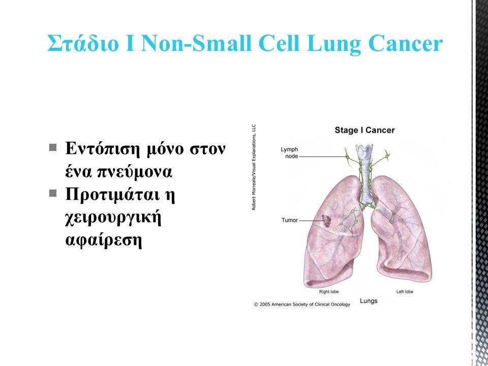Στάδιο Ι Non-Small Cell Lung Cancer  Εντόπιση μόνο στον ένα πνεύμονα  Προτιμάται η χειρουργική αφαίρεση