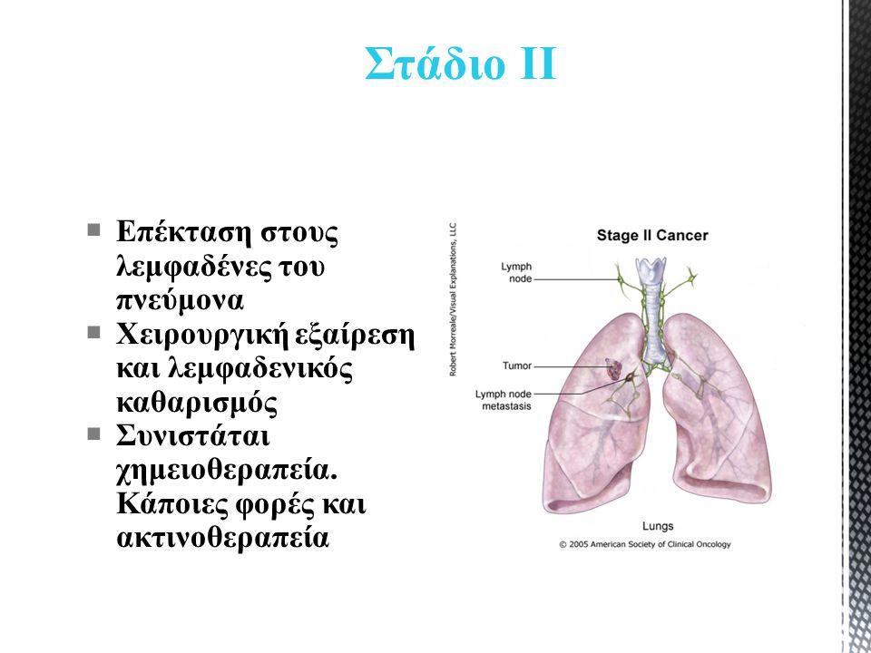 Στάδιο ΙΙ  Επέκταση στους λεμφαδένες του πνεύμονα  Χειρουργική εξαίρεση και λεμφαδενικός καθαρισμός  Συνιστάται χημειοθεραπεία.