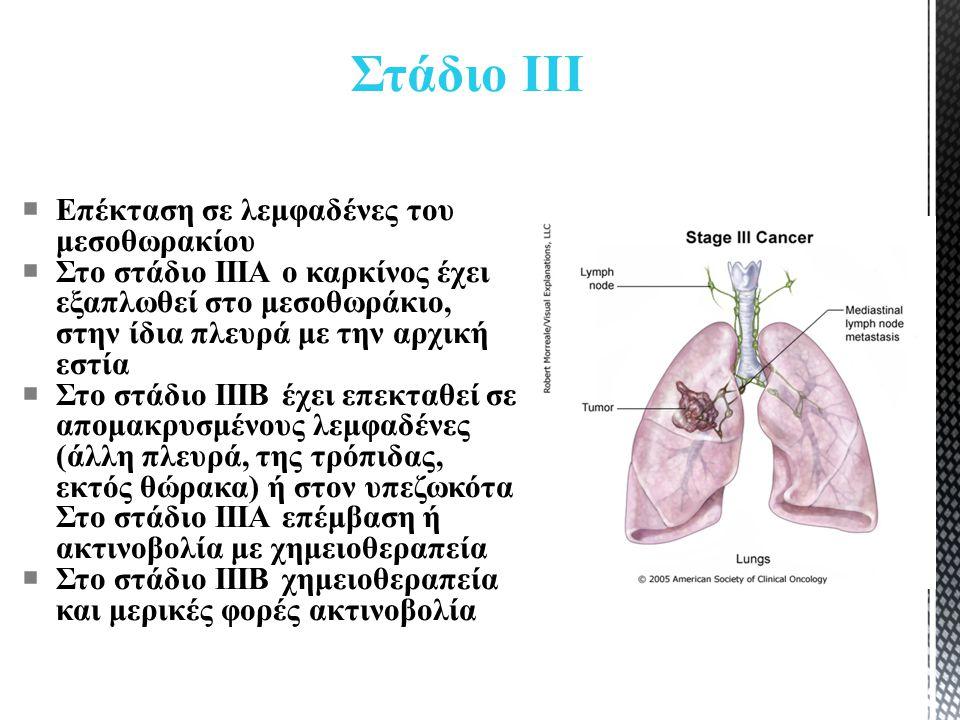 Στάδιο ΙΙΙ  Επέκταση σε λεμφαδένες του μεσοθωρακίου  Στο στάδιο IIIA ο καρκίνος έχει εξαπλωθεί στο μεσοθωράκιο, στην ίδια πλευρά με την αρχική εστία  Στο στάδιο IIIB έχει επεκταθεί σε απομακρυσμένους λεμφαδένες (άλλη πλευρά, της τρόπιδας, εκτός θώρακα) ή στον υπεζωκότα Στο στάδιο ΙΙΙΑ επέμβαση ή ακτινοβολία με χημειοθεραπεία  Στο στάδιο ΙΙΙΒ χημειοθεραπεία και μερικές φορές ακτινοβολία