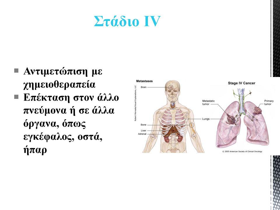 Στάδιο ΙV  Αντιμετώπιση με χημειοθεραπεία  Επέκταση στον άλλο πνεύμονα ή σε άλλα όργανα, όπως εγκέφαλος, οστά, ήπαρ