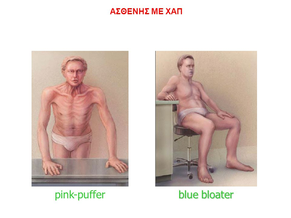 R Χρόνια Βρογχίτιδα Εμφύσημα ΑΣΘΕΝΗΣ ΜΕ ΧΑΠ blue bloater pink-puffer