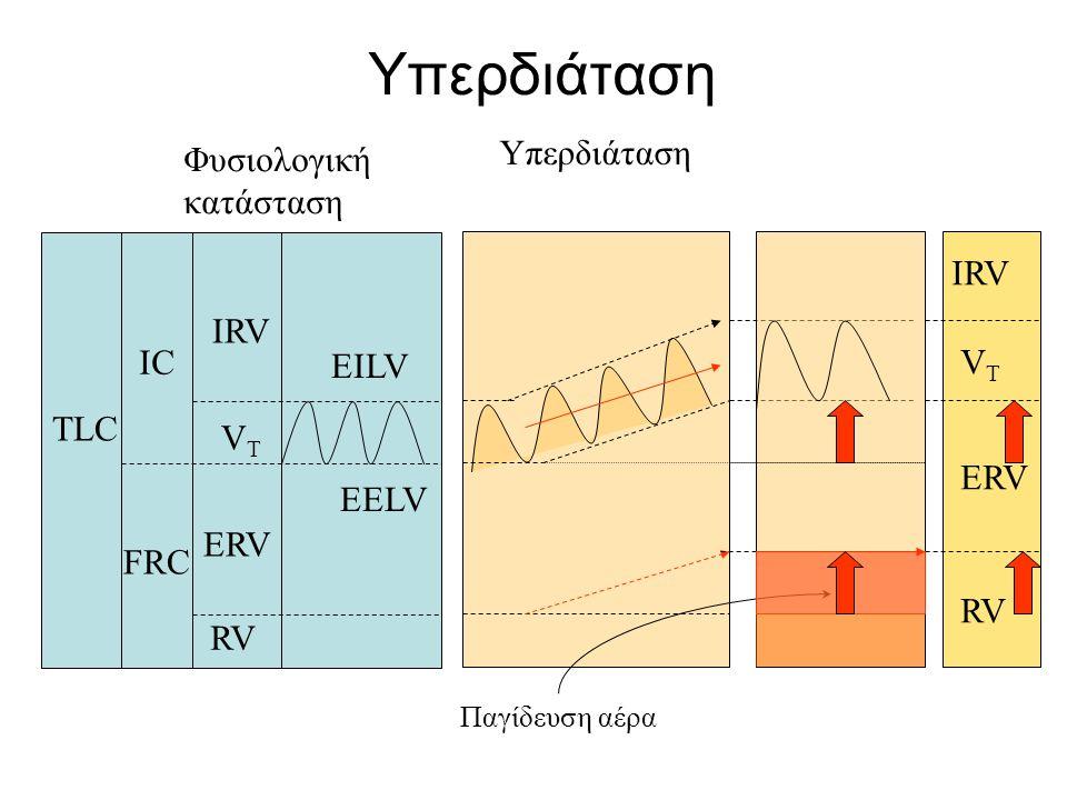 Υπερδιάταση VTVT IRV ERV IC FRC RV TLC Φυσιολογική κατάσταση EELV EILV Υπερδιάταση Παγίδευση αέρα RV ERV VTVT IRV