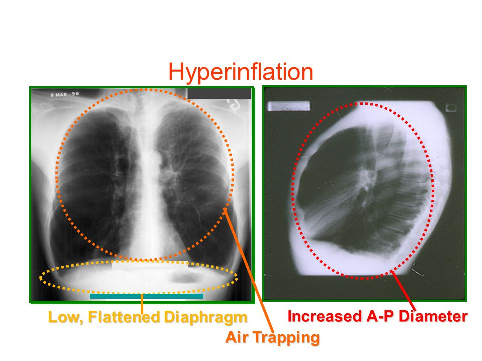 Low, Flattened Diaphragm Increased A-P Diameter Air Trapping Hyperinflation