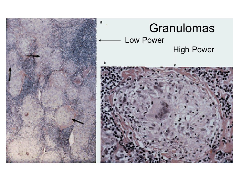 Granulomas Low Power High Power
