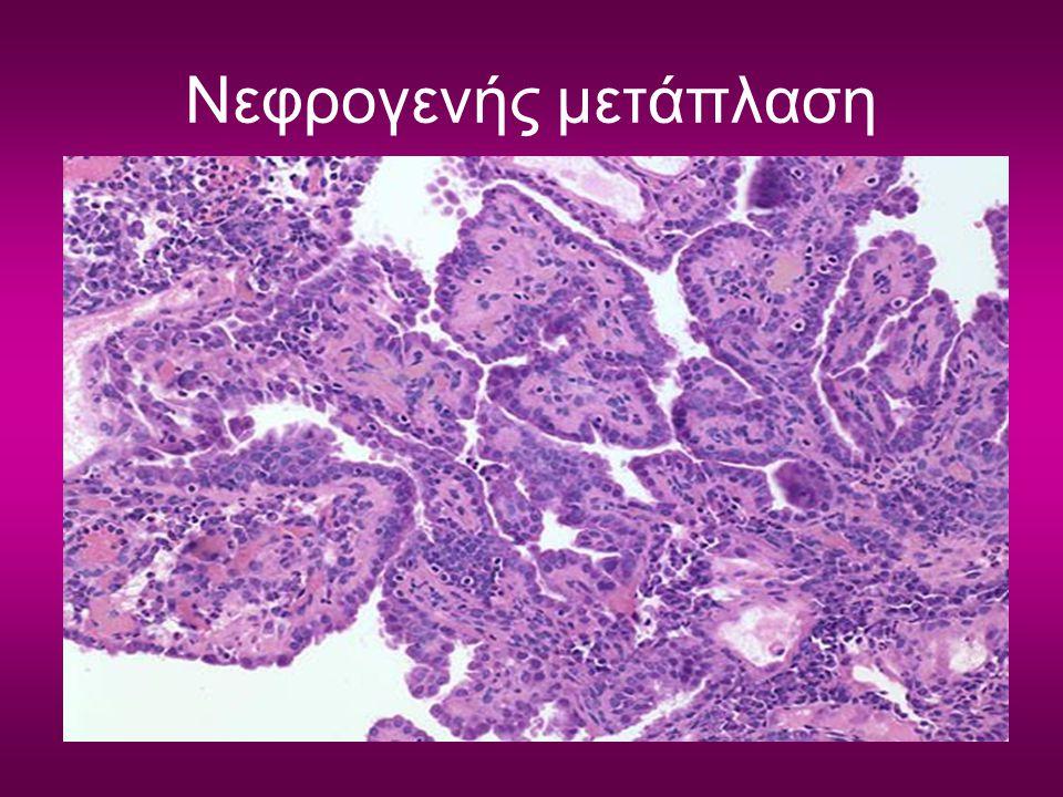 Νεφρογενής μετάπλαση