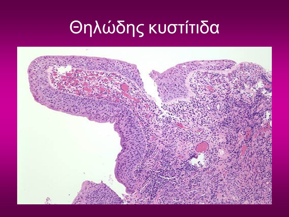 Θηλώδης κυστίτιδα