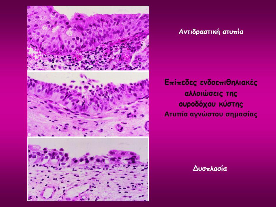 Επίπεδες ενδοεπιθηλιακές αλλοιώσεις της ουροδόχου κύστης Ατυπία αγνώστου σημασίας Αντιδραστική ατυπία Δυσπλασία
