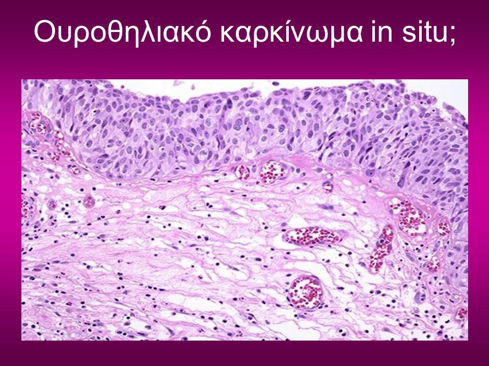 Ουροθηλιακό καρκίνωμα in situ;