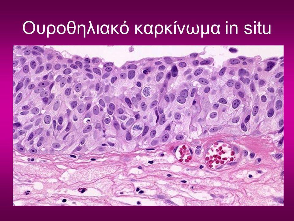 Ουροθηλιακό καρκίνωμα in situ