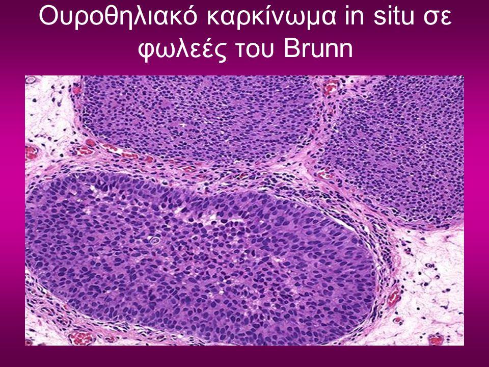 Ουροθηλιακό καρκίνωμα in situ σε φωλεές του Brunn