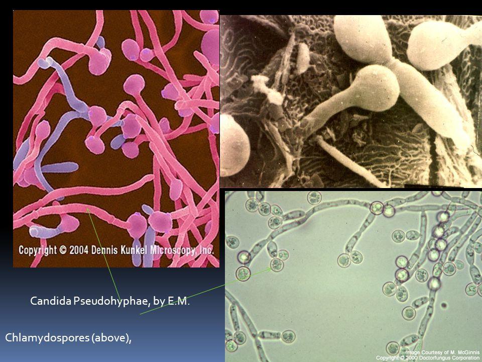 Candida Pseudohyphae, by E.M. Chlamydospores (above),