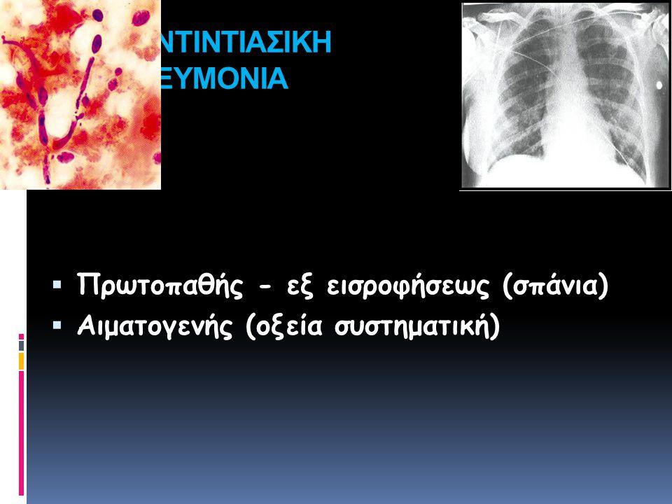 ΚΑΝΤΙΝΤΙΑΣΙΚΗ ΠΝΕΥΜΟΝΙΑ  Πρωτοπαθής - εξ εισροφήσεως (σπάνια)  Αιματογενής (οξεία συστηματική)