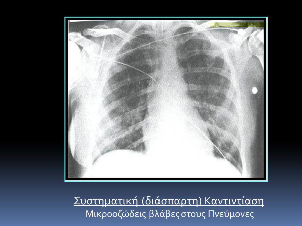 Συστηματική (διάσπαρτη) Καντιντίαση Μικροοζώδεις βλάβες στους Πνεύμονες