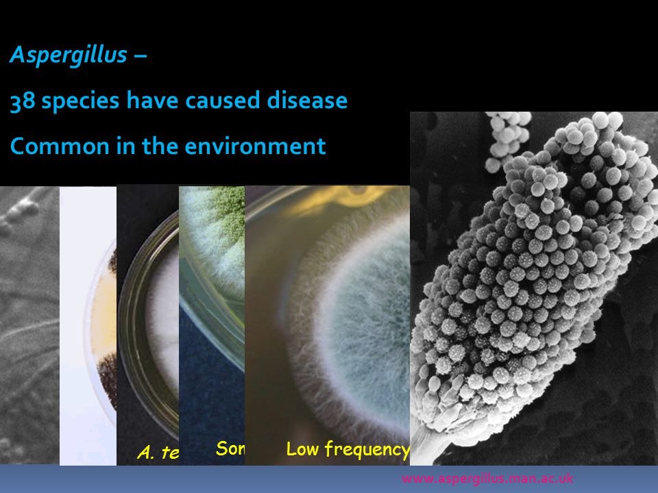 A. nidulans – may be amphotericin B resistant A. terreus – resistant to AmB Aspergillus – 38 species have caused disease Common in the environment Som