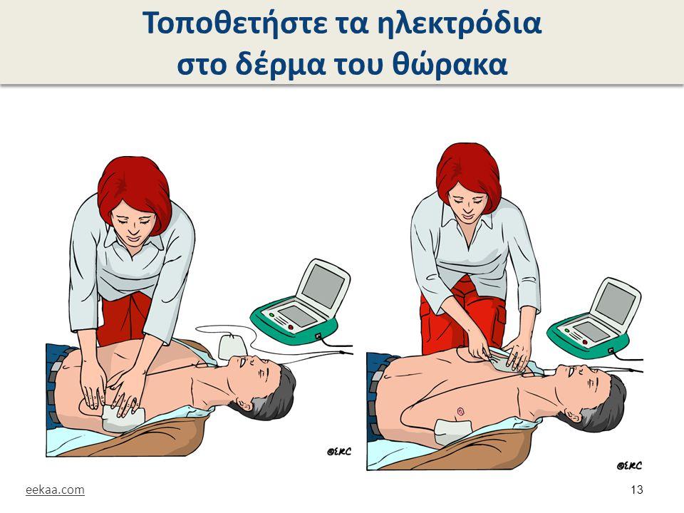 Τοποθετήστε τα ηλεκτρόδια στο δέρμα του θώρακα eekaa.com 13