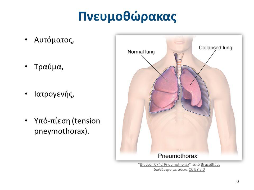 """Πνευμοθώρακας Αυτόματος, Τραύμα, Ιατρογενής, Υπό-πίεση (tension pneymothorax). """"Blausen 0742 Pneumothorax"""", από BruceBlaus διαθέσιμο με άδεια CC BY 3."""