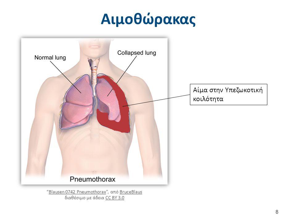 """Αιμοθώρακας Αίμα στην Υπεζωκοτική κοιλότητα """"Blausen 0742 Pneumothorax"""", από BruceBlaus διαθέσιμο με άδεια CC BY 3.0Blausen 0742 PneumothoraxBruceBlau"""
