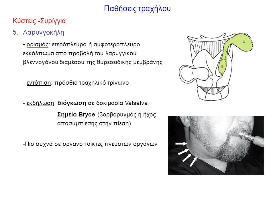 Παθήσεις τραχήλου Κύστεις -Συρίγγια 5.Λαρυγγοκήλη - ορισμός: ετερόπλευρο ή αμφοτερόπλευρο εκκόλπωμα από προβολή του λαρυγγικού βλεννογόνου διαμέσου της θυρεοειδικής μεμβράνης - εντόπιση: πρόσθιο τραχηλικό τρίγωνο - εκδήλωση: διόγκωση σε δοκιμασία Valsalva Σημείο Bryce (βορβορυγμός ή ήχος αποσυμπίεσης στην πίεση) -Πιο συχνά σε οργανοπαίκτες πνευστών οργάνων