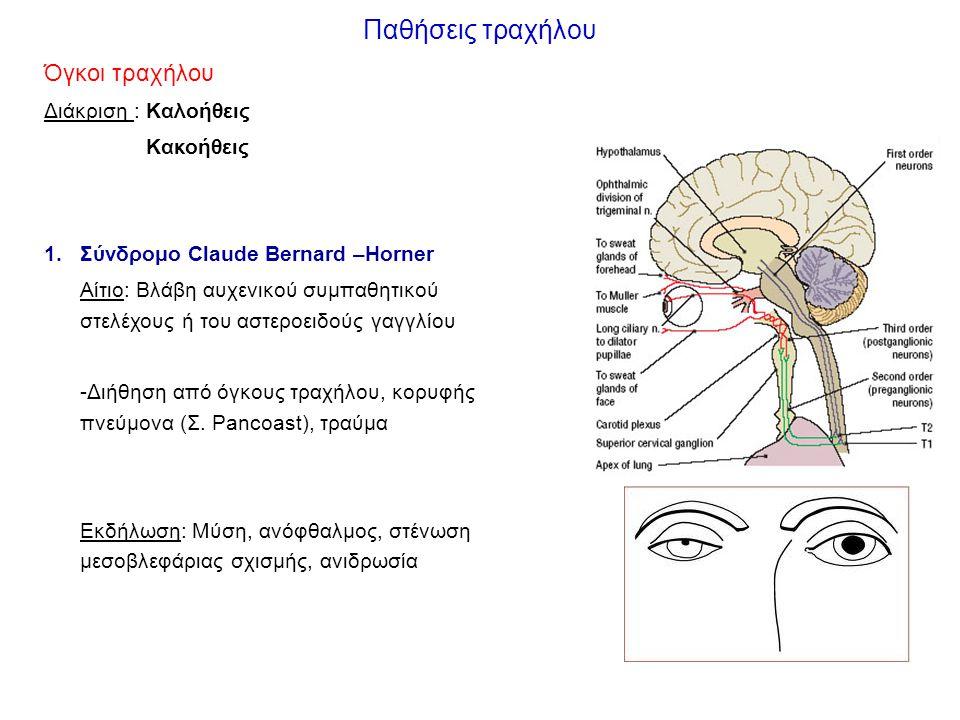 Παθήσεις τραχήλου Όγκοι τραχήλου Διάκριση : Καλοήθεις Κακοήθεις 1.Σύνδρομο Claude Bernard –Horner Αίτιο: Βλάβη αυχενικού συμπαθητικού στελέχους ή του αστεροειδούς γαγγλίου -Διήθηση από όγκους τραχήλου, κορυφής πνεύμονα (Σ.