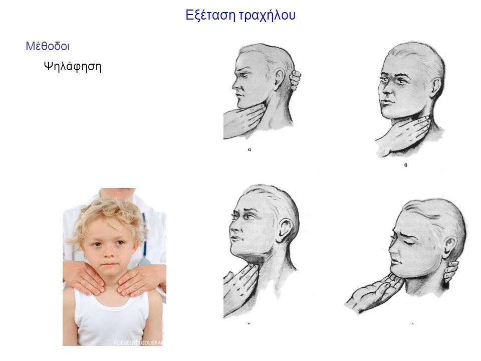 Παθήσεις τραχήλου Φλεγμονές 1.Δοθιήνας 2.Κυνάγχη Ludwig: φλεγμονή μαλακών μορίων κάτω από τη γλώσσα εστία: γλώσσα, οδόντες κάτω γνάθου επέκταση: λεμφογενώς, κατά συνέχεια ιστού εκδήλωση: σημεία φλεγμονής, έντονο οίδημα, δύσπνοια (πίεση τραχείας) 3.Ακτινομυκητίαση Αίτιο: ακτινομύκητας Israeli (αναερόβιο gram -) εντόπιση: τραχηλοπροσωπική πύλη εισόδου: αμυγδαλές, ούλα εκδήλωση: ερυθρότητα-διήθηση δέρματος, συρίγγια δέρματος, πυώδες υγρό (κίτρινοι κόκκοι)