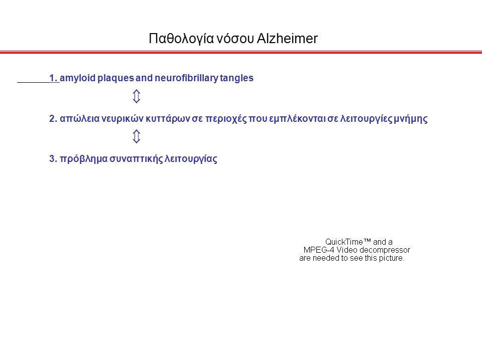 Παθολογία νόσου Alzheimer 1.amyloid plaques and neurofibrillary tangles 2.