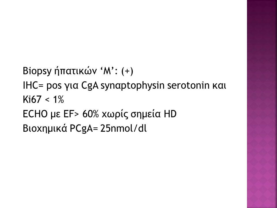 Biopsy ήπατικών 'Μ': (+) IHC= pos για CgA synαptophysin serotonin και Ki67 < 1% ΕCHO με EF> 60% χωρίς σημεία HD Βιοχημικά PCgA= 25nmol/dl