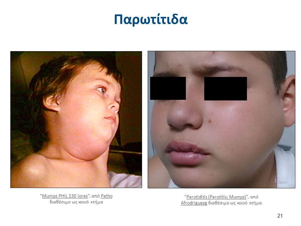 """Παρωτίτιδα 21 """"Mumps PHIL 130 lores"""", από Patho διαθέσιμο ως κοινό κτήμαMumps PHIL 130 loresPatho """"Parotiditis (Parotitis; Mumps)"""", από Afrodriguezg δ"""