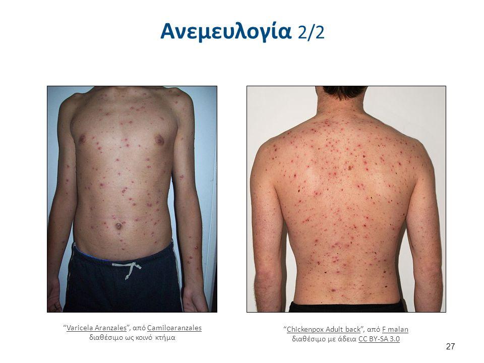 """Ανεμευλογία 2/2 27 """"Chickenpox Adult back"""", από F malan διαθέσιμο με άδεια CC BY-SA 3.0Chickenpox Adult backF malanCC BY-SA 3.0 """"Varicela Aranzales"""","""