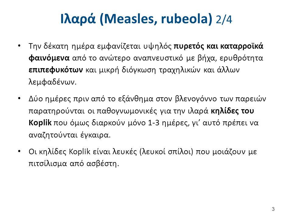 Ιλαρά (Measles, rubeola) 2/4 Την δέκατη ημέρα εμφανίζεται υψηλός πυρετός και καταρροϊκά φαινόμενα από το ανώτερο αναπνευστικό με βήχα, ερυθρότητα επιπεφυκότων και μικρή διόγκωση τραχηλικών και άλλων λεμφαδένων.
