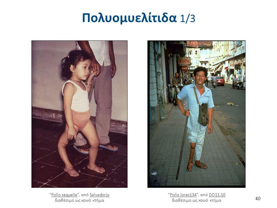"""Πολυομυελίτιδα 1/3 40 """"Polio lores134"""", από DO11.10 διαθέσιμο ως κοινό κτήμαPolio lores134DO11.10 """"Polio sequelle"""", από Salvadorjo διαθέσιμο ως κοινό"""
