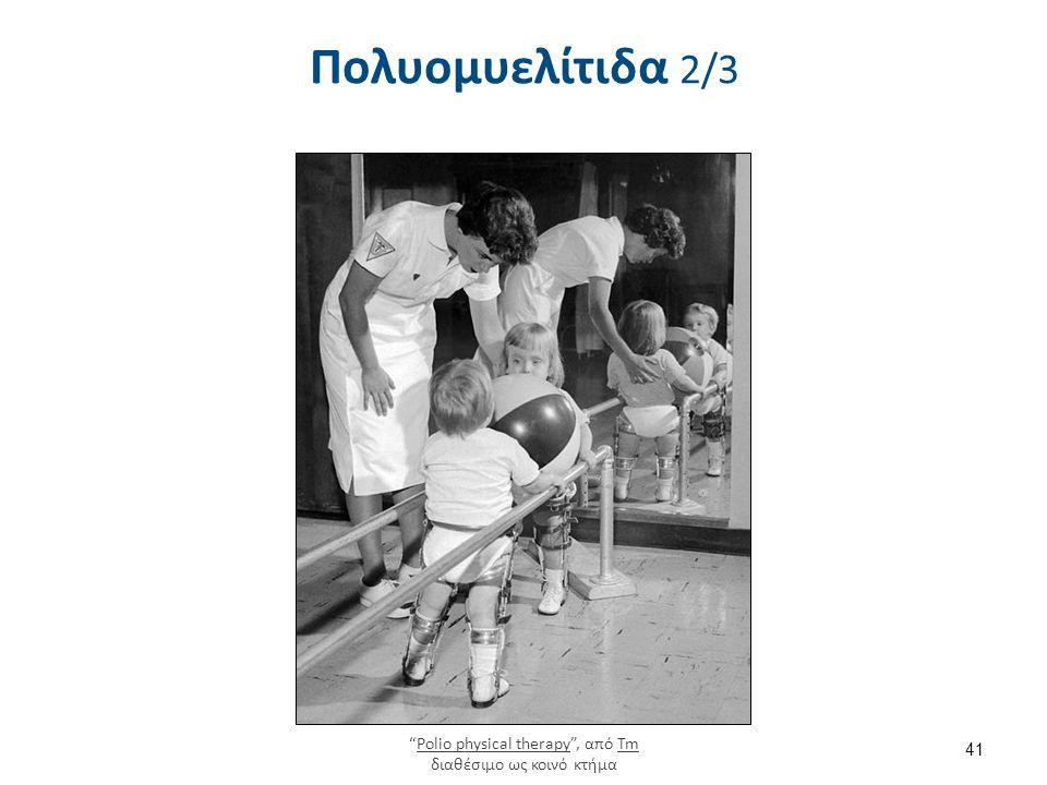 """Πολυομυελίτιδα 2/3 41 """"Polio physical therapy"""", από Tm διαθέσιμο ως κοινό κτήμαPolio physical therapyTm"""