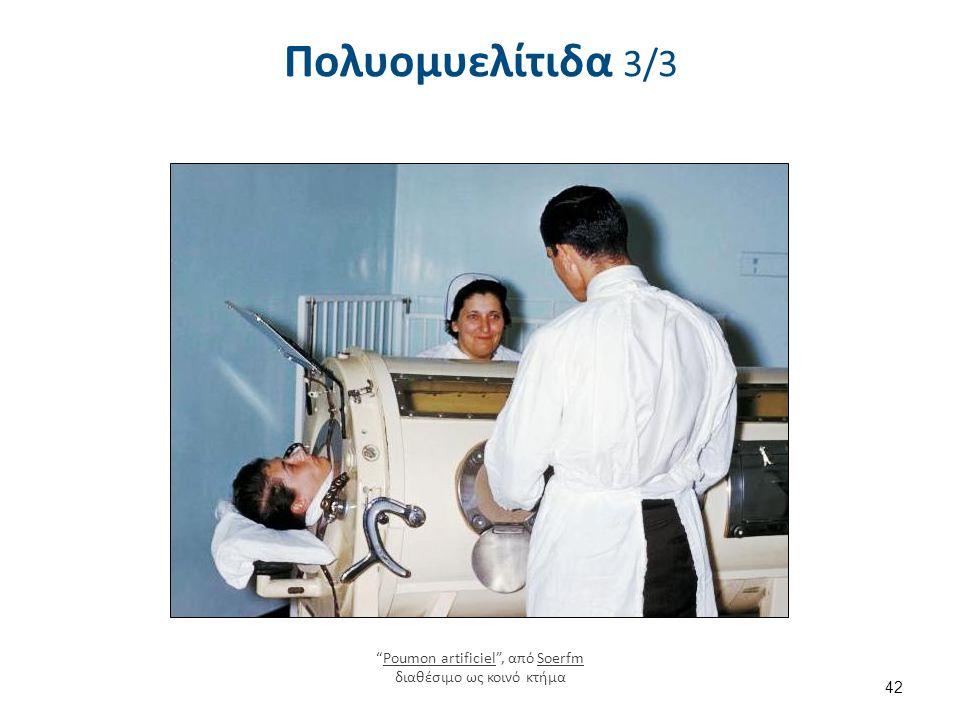 """Πολυομυελίτιδα 3/3 42 """"Poumon artificiel"""", από Soerfm διαθέσιμο ως κοινό κτήμαPoumon artificielSoerfm"""