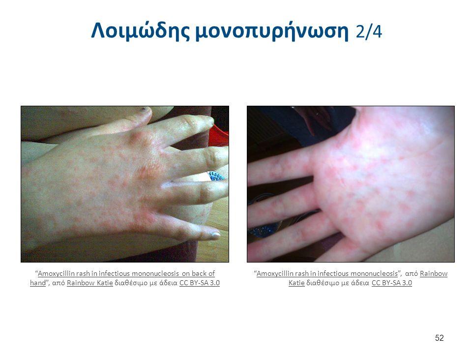 Λοιμώδης μονοπυρήνωση 2/4 52 Amoxycillin rash in infectious mononucleosis , από Rainbow Katie διαθέσιμο με άδεια CC BY-SA 3.0Amoxycillin rash in infectious mononucleosisRainbow KatieCC BY-SA 3.0 Amoxycillin rash in infectious mononucleosis on back of hand , από Rainbow Katie διαθέσιμο με άδεια CC BY-SA 3.0Amoxycillin rash in infectious mononucleosis on back of handRainbow KatieCC BY-SA 3.0