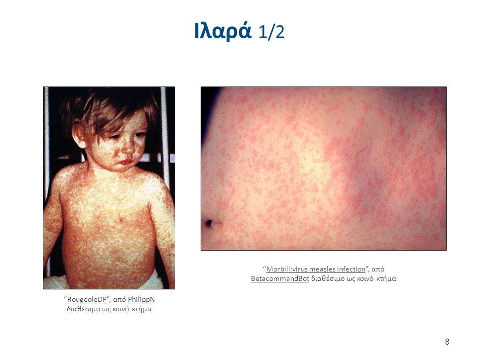 """Ιλαρά 1/2 """"RougeoleDP"""", από PhilippN διαθέσιμο ως κοινό κτήμαRougeoleDPPhilippN """"Morbillivirus measles infection"""", από BetacommandBot διαθέσιμο ως κοι"""