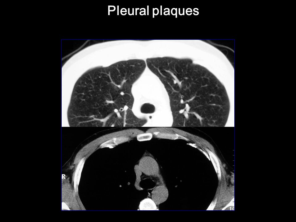 Pleural plaques Pleural plaques