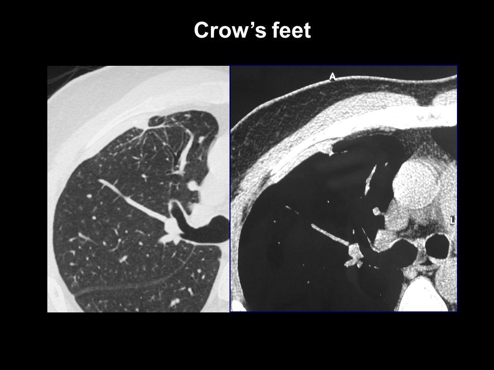 Crow's feet Crow's feet