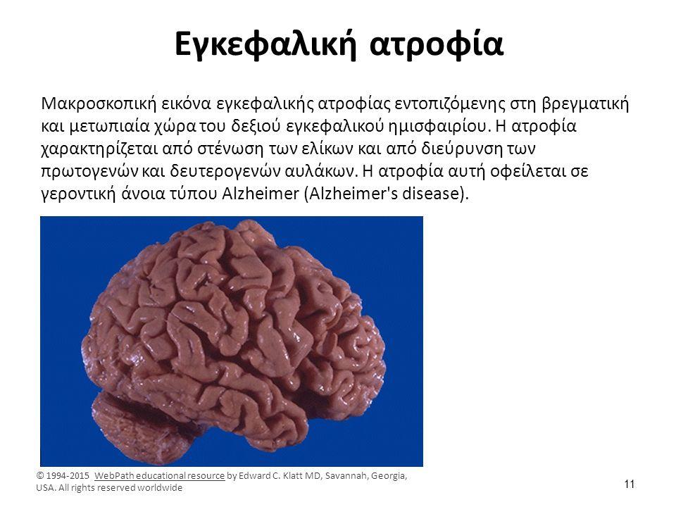 Εγκεφαλική ατροφία Μακροσκοπική εικόνα εγκεφαλικής ατροφίας εντοπιζόμενης στη βρεγματική και μετωπιαία χώρα του δεξιού εγκεφαλικού ημισφαιρίου. Η ατρο
