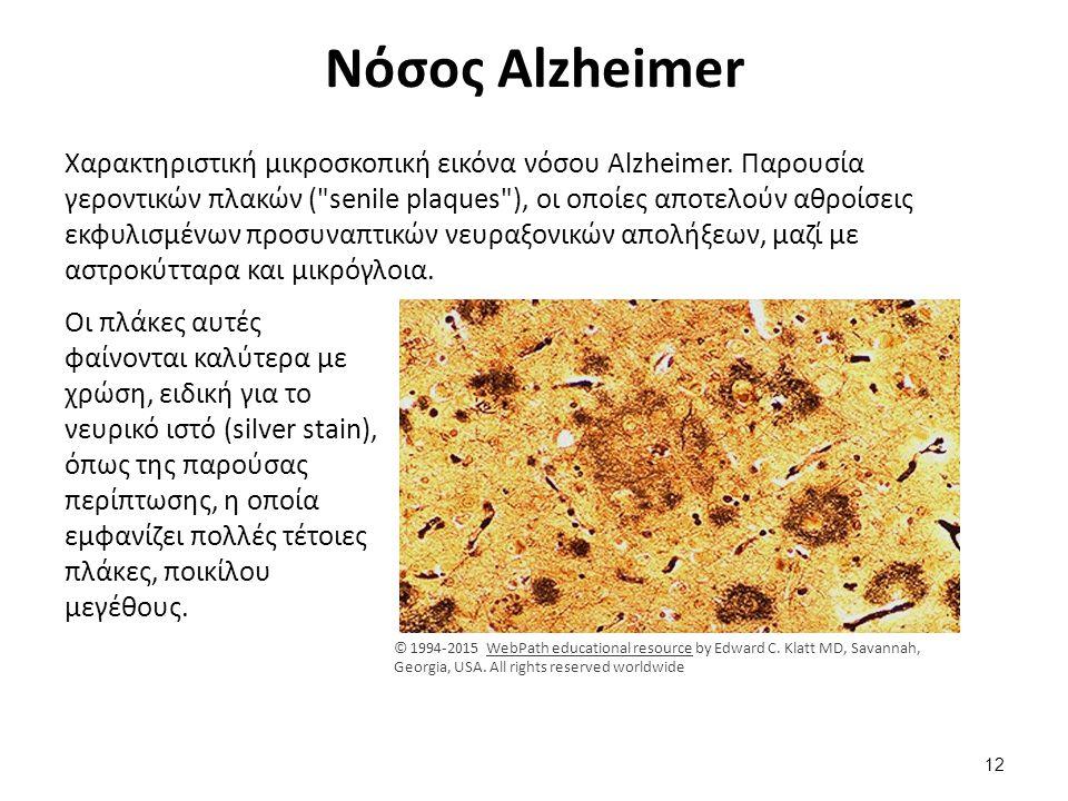 Νόσος Alzheimer Χαρακτηριστική μικροσκοπική εικόνα νόσου Alzheimer. Παρουσία γεροντικών πλακών (
