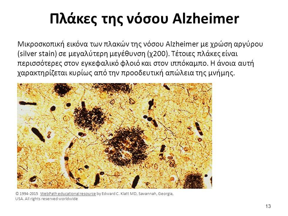 Πλάκες της νόσου Alzheimer Μικροσκοπική εικόνα των πλακών της νόσου Alzheimer με χρώση αργύρου (silver stain) σε μεγαλύτερη μεγέθυνση (χ200). Τέτοιες