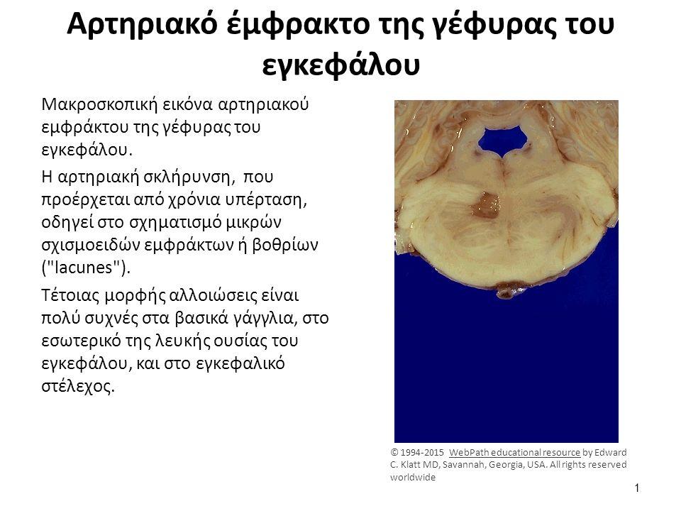 Aρτηριακό έμφρακτο της γέφυρας του εγκεφάλου Μακροσκοπική εικόνα αρτηριακού εμφράκτου της γέφυρας του εγκεφάλου. Η αρτηριακή σκλήρυνση, που προέρχεται