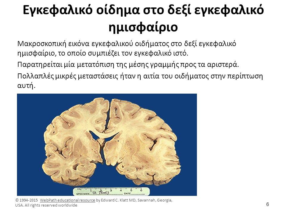 Εγκεφαλικό οίδημα στο δεξί εγκεφαλικό ημισφαίριο Μακροσκοπική εικόνα εγκεφαλικού οιδήματος στο δεξί εγκεφαλικό ημισφαίριο, το οποίο συμπιέζει τον εγκε