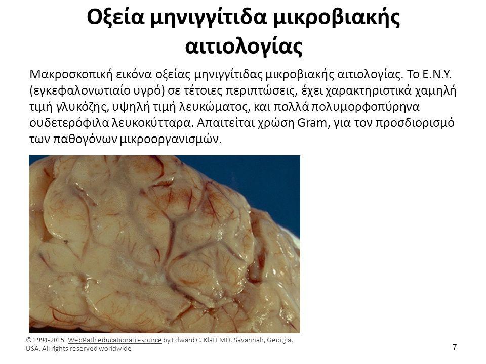 Οξεία μηνιγγίτιδα μικροβιακής αιτιολογίας Μακροσκοπική εικόνα οξείας μηνιγγίτιδας μικροβιακής αιτιολογίας. Το Ε.Ν.Υ. (εγκεφαλονωτιαίο υγρό) σε τέτοιες