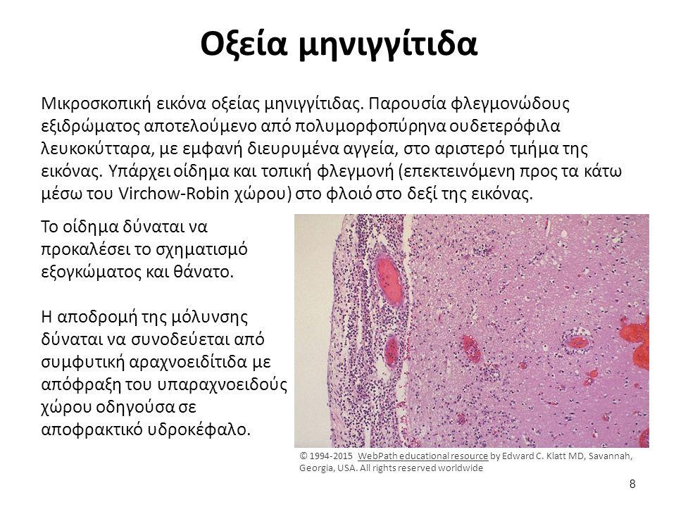 Οξεία μηνιγγίτιδα Μικροσκοπική εικόνα οξείας μηνιγγίτιδας. Παρουσία φλεγμονώδους εξιδρώματος αποτελούμενο από πολυμορφοπύρηνα ουδετερόφιλα λευκοκύτταρ