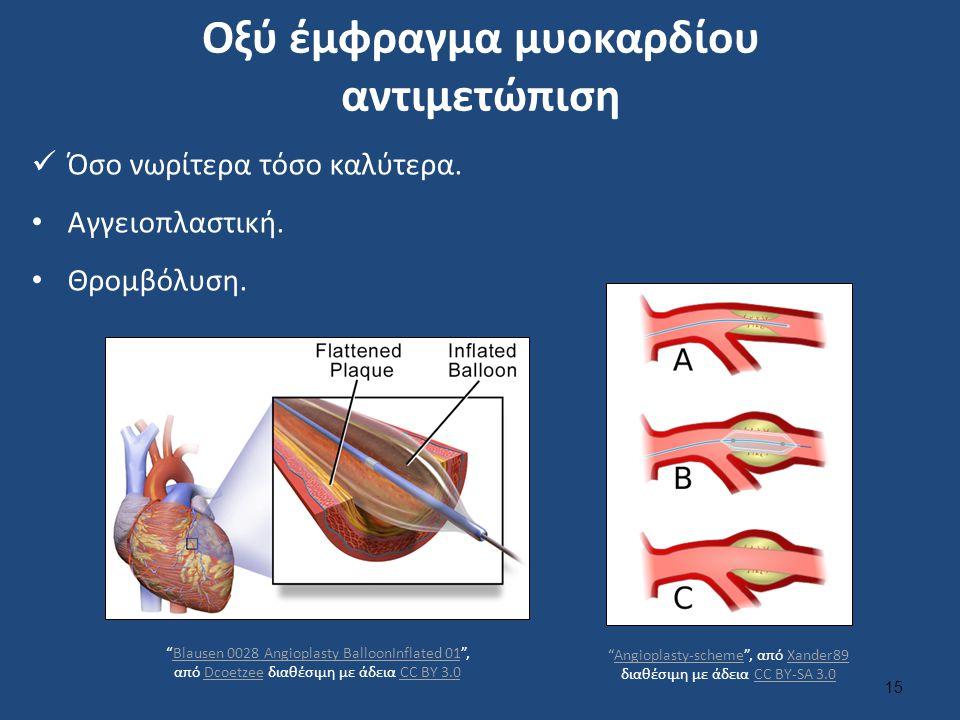 """Οξύ έμφραγμα μυοκαρδίου αντιμετώπιση Όσο νωρίτερα τόσο καλύτερα. Αγγειοπλαστική. Θρομβόλυση. """"Blausen 0028 Angioplasty BalloonInflated 01"""", από Dcoetz"""
